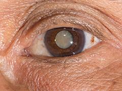 片目 する が 目 だけ ゴロゴロ